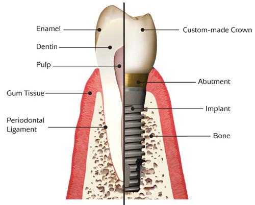 best-dental implant-in-encino